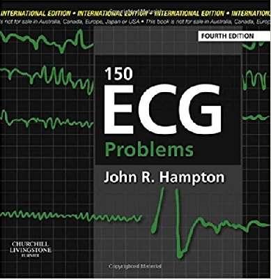 150ECG Problem