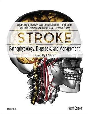Stroke: Pathophysiology, Diagnosis, and Management, 6e