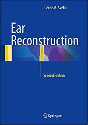 Ear Reconstruction