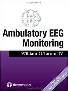 Ambulatory EEG