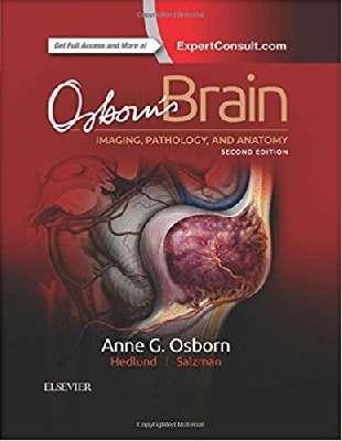 Osborn`s Brain