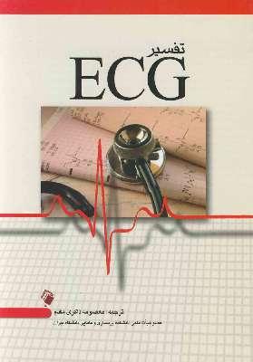 تفسیر ECG