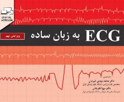 ECG به زبان ساده