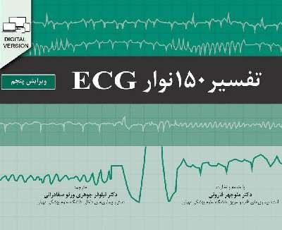 تفسیر ۱۵۰ نوار ECG