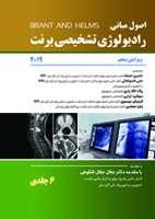اصول رادیولوژی برنت ۲۰۱۹ – ۶ جلدی