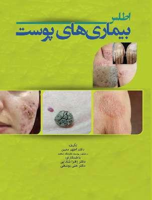 اطلس بیماری های پوست | رنگی